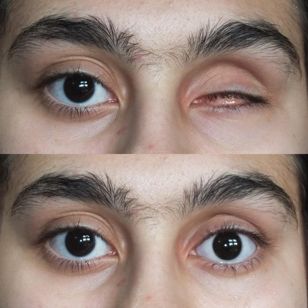 تخلیه چشم