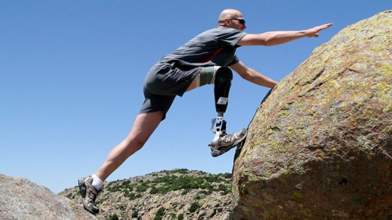 پای مصنوعی بالای زانو و ورزش