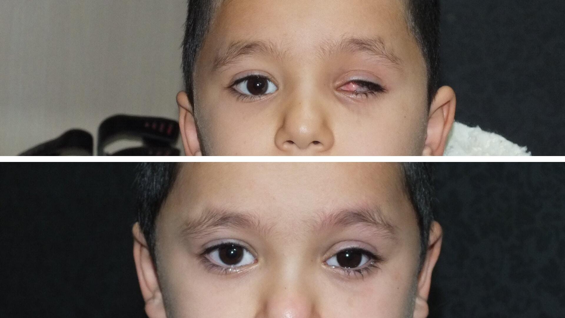 جراحی تخلیه چشم