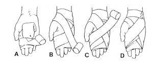 بانداژ 8 کف دست