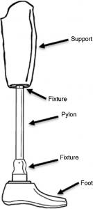 پروتز پایلون ساختاری سخت و میلهای است که بین زانو و پا قرار گرفته و به تحمل وزن و جذب تکانها کمک میکند. این پروتز در هر دو قطع عضو بالای زانو و زیر زانو کاربرد داشته و کمک میکند فرد توانایی راه رفتن خود را با سرعت بیشتری کسب کند. پروتز چیست؟ واژه پروتز در ریشه یونانی به معنای واحد ضمیمه شده یا اضافه شده میباشد. پروتزها ساختارهایی هستند که جایگزین یک ساختار طبیعی در بدن میشوند و به بازگشت عملکرد آن بخش کمک میکنند. حوادث مختلفی از جمله تصادفهای رانندگی، بیماریها و عفونتهای مختلف میتوانند منجر به قطع یکی از اندامها شوند. در این شرایط فرد میتواند با کمک پروتزها، عملکرد طبیعی آن اندام را تا حد بسیار خوبی به دست آورد. پروتزها انواع متفاوتی دارند. پروتزهای اندامی از معروفترینها هستند. این ساختارها جایگزین اندامهای فوقانی یا تحتانی میشوند تا فرد بتواند به زندگی عادی خود بازگردد. اندام تحتانی که شامل بخشهای مختلف پا (Leg) میباشد وظیفه حفظ تعادل، تحمل وزن و حرکت را برعهده دارد؛ به همین دلیل پروتزهای آن نیز باید از ویژگیهای خاصی برخوردار باشند تا بتوانند عملکرد عادی پا را برای فرد ایفا کنند و وی را دچار آسیب نکنند. پس تا اینجا فهمیدیم پروتزهای اندام تحتانی باید ویژگیهای مختلفی داشته باشند. برای همین منظور، این پروتزها ساختار متفاوتی دارند و از واحدهای مختلفی تشکیل شدهاند. یکی از اجزای مهم پروتز اندام تحتانی پایلون است. پروتز پایلون بخشی میلهای است که در قسمت ساق پا قرار میگیرد. پروتز پایلون چیست؟ پایلون یک میله است که معمولا در پروتزهای اندام تحتانی نقش ساق پا را ایفا میکند. پروتز پایلون یا به عبارت صحیحتر، پروتز گچ-پایلون، یکی از انواع پروتزهای موقت است. این پروتز در آمپوتاسیونهای بالای زانو یا زیر زانو مورد استفاده قرار میگیرد. این پروتز بین بخش باقی مانده اندام (ریشه پا) و پای پروتزی (Prosthetic Foot) قرار گرفته و بلافاصله بعد از انجام عمل جراحی و به صورت موقت کار گذاشته میشود. تاریخچه مراقبتهای بعد از عمل آمپوتاسیون برای درک کاربرد این پروتز، بهتر است مروری بر تاریخچه مراقبتهای بعد از عمل آمپوتاسیون بپردازیم. در سالهای نه چندان دور، بعد از انجام آمپوتاسیون پا، از بانداژهای فشاری استفاده میشد، اما استفاده این بانداژها مشکلاتی برای فرد ایجاد میکرد. دیده شد که استفاده از باند