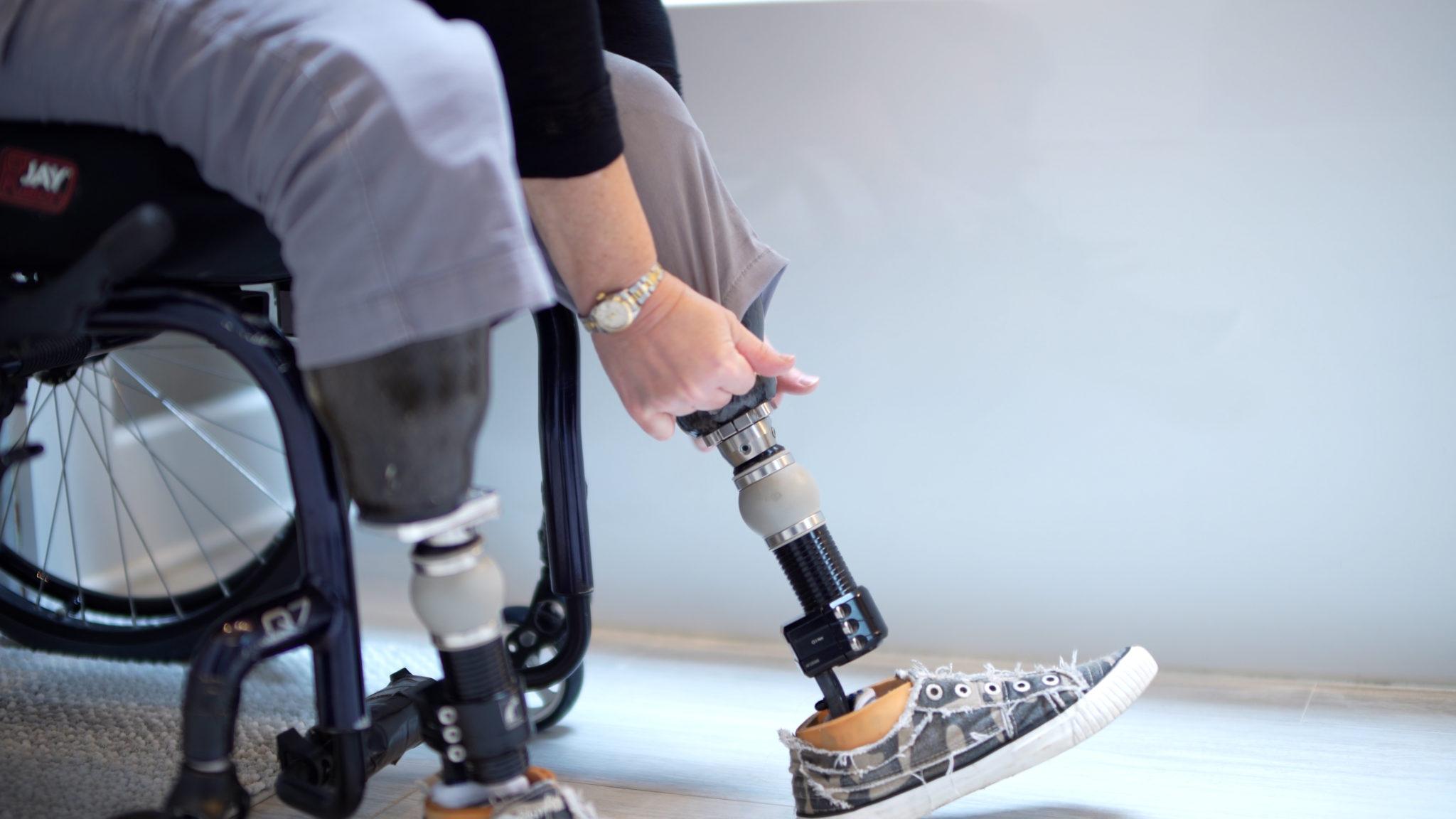مراحل پای مصنوعی بالای زانو