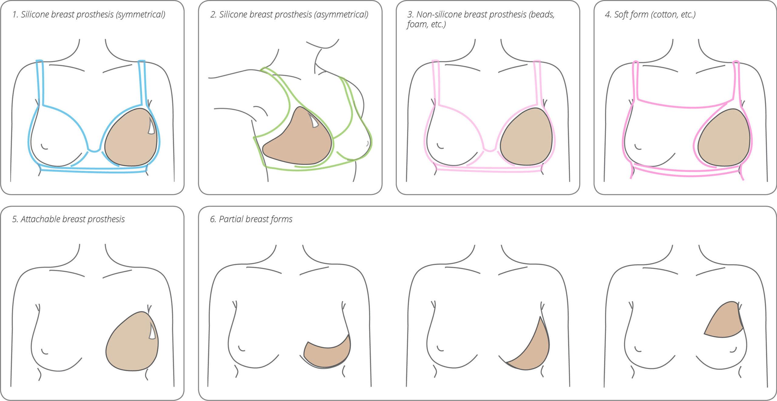 انواع پروتز خارجی سینه
