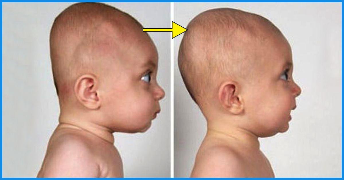 تغییر شکل جمجمه نوزاد