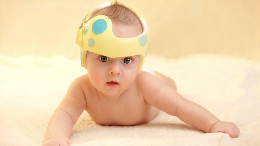 کلاه درمانی جهت اصلاح فرم سر نوزاد