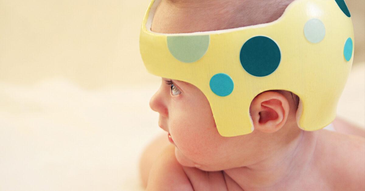 کلاه درمانی کجی جمجمه نوزاد