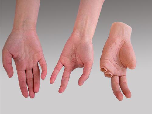 پروتز دست و آرنج